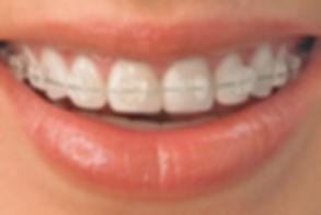 ceramic-braces2.jpg