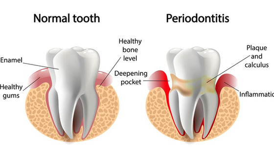 The Relationship of Periodontal Disease to Other Diseases