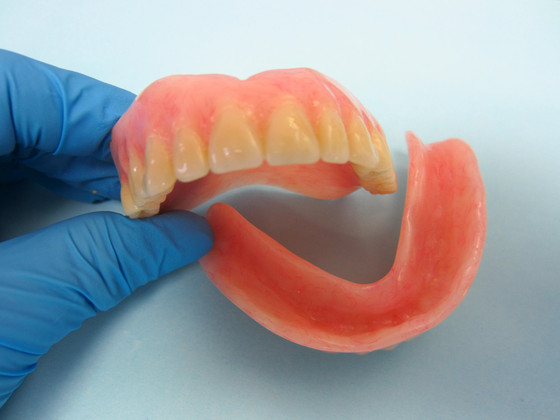 The most common questions  about dentures