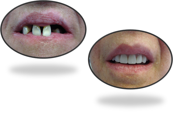 Immediate denture: or how to replace hopeless teeth with a denture in the same dental visit?