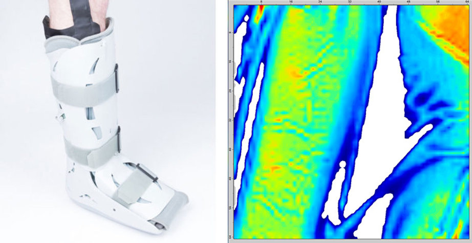 Person's leg in an air cast with an LX100 sensor next to a data visualization of the pressure showing areas of high-pressure.
