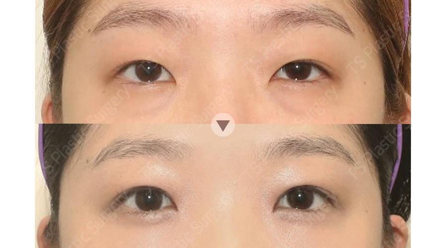 김지선 187910 C 눈(자연유착,비절개눈매교정,앞트임,눈밑지방제거)아