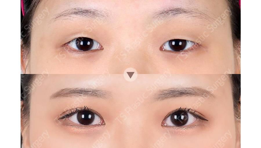 김남주 202312 C 눈(절개법,절개눈매교정)아이패드 눈.jpg