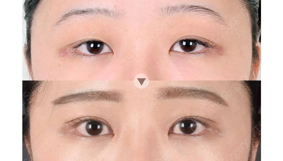 강소희 206845 C 눈(자연유착, 비절개눈매교정,앞트임)아이패드 눈