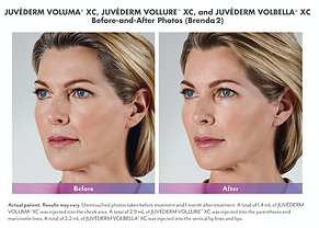 before and after juvederm