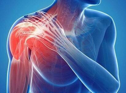 Shoulder Pain, Shoulder Injury