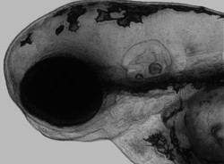 High resolution imaging and Z-projection of the head of a zebrafish larva