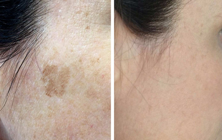 PicoWay-Laser-age-spot-removal-before-an