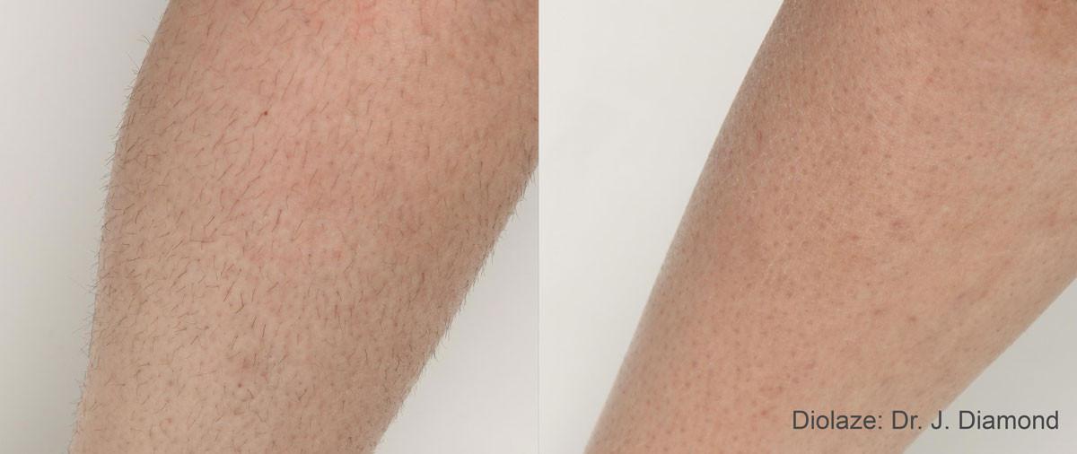 Diolaze-Before-After.jpg