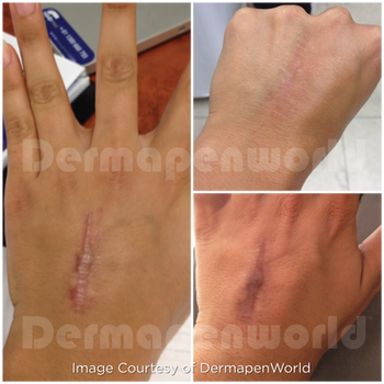 Scar_Hand.png
