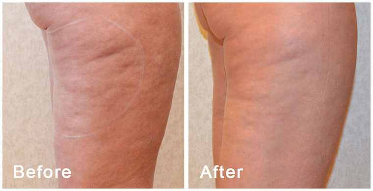 body-fx-before-after-2.jpg