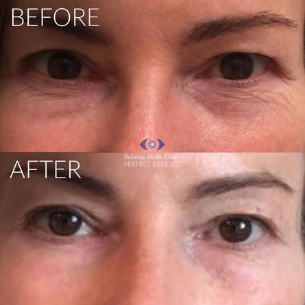 tixel-treatment-london-before-after1.jpg