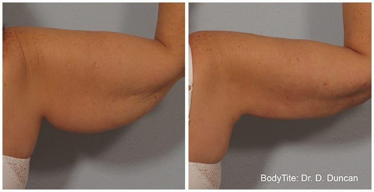 BodyTite-before-after-1.jpg