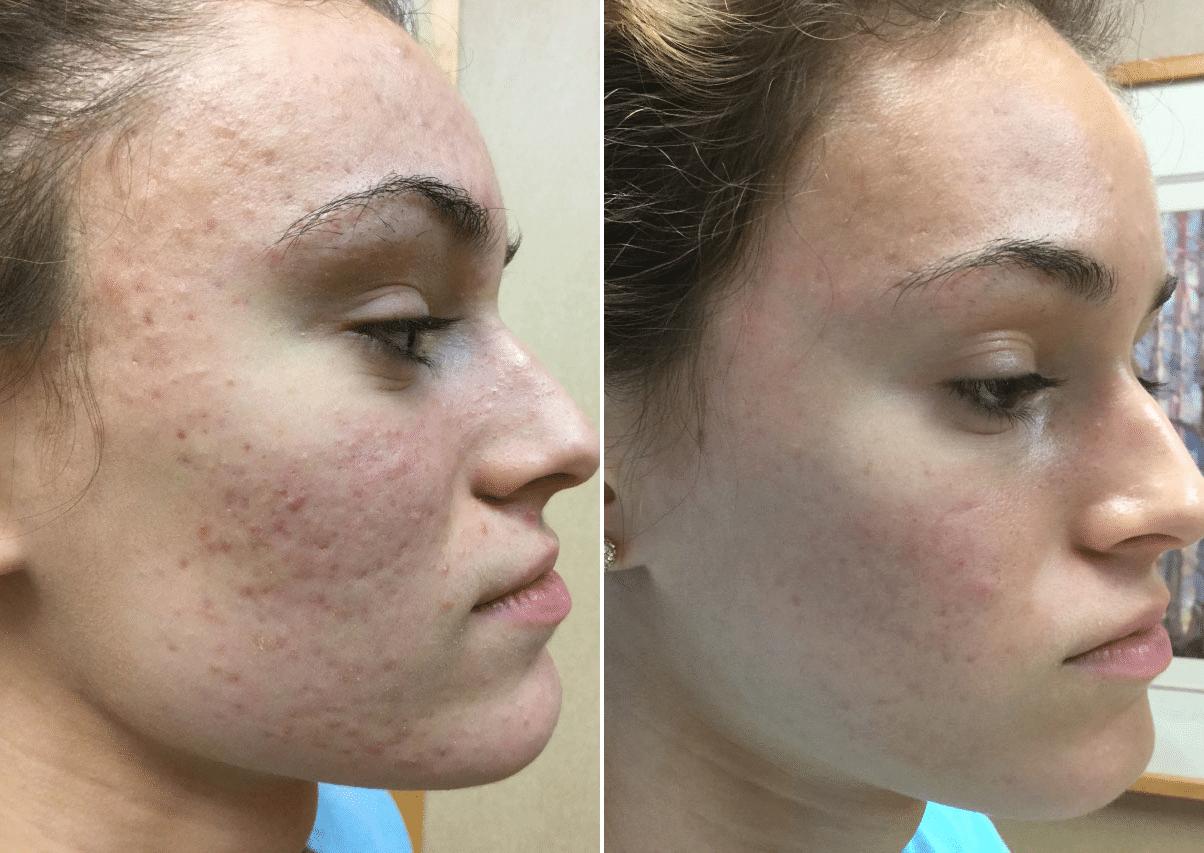 acne-scar-smoothbeam-vbeam-4500-18yo-cau