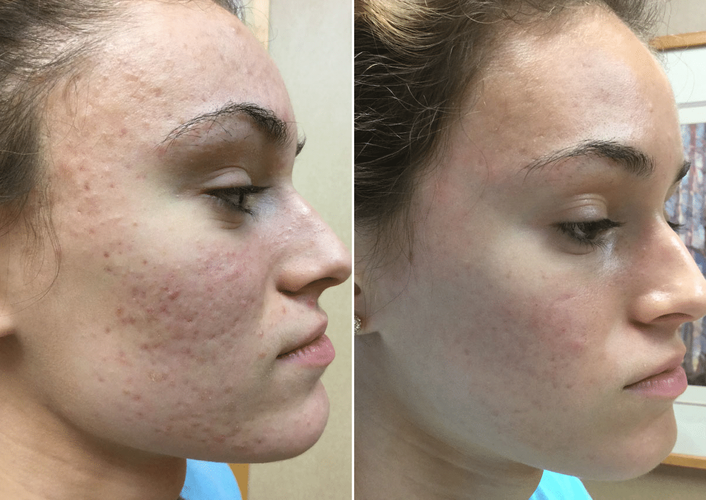 acne-scar-smoothbeam-vbeam-4500-18yo-cau