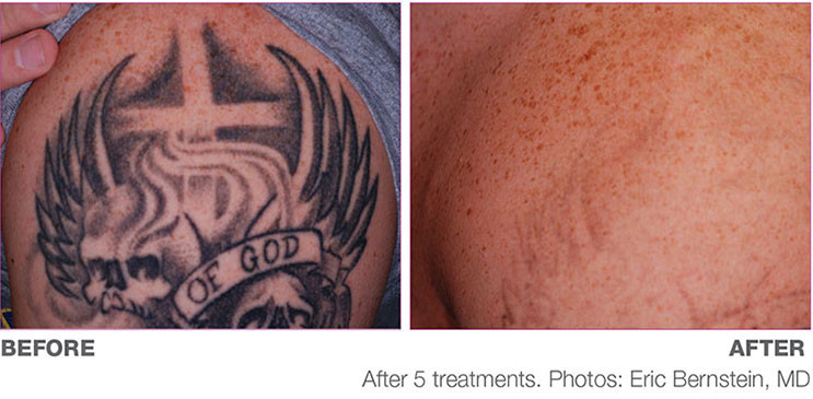PicoWay-Tattoo-Before-and-After-1.jpg