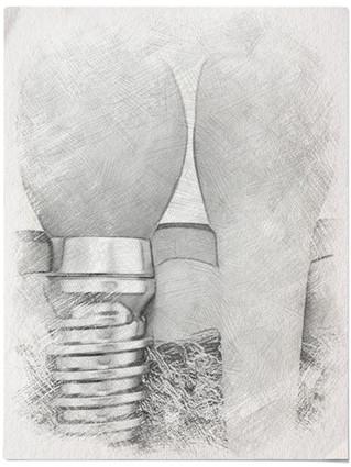 L'IMPLANTOLOGIE : Remplacer les dents absentes par des implants dentaires