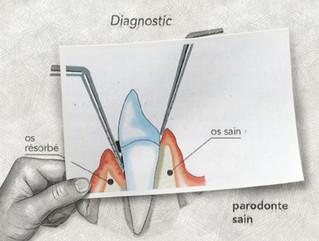 Cabinet de parodontologie du Dr Houvenaeghel Brice à Marseille