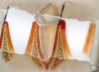PARODONTISTE : Un chirurgien-dentiste spécialiste des gencives