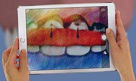 greffe_gencive_chirurgien_dentiste_speci