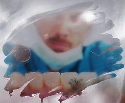 bilan dentaire2.jpg