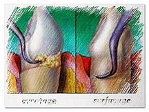 surfacage_detartrage_en_profondeur_trait