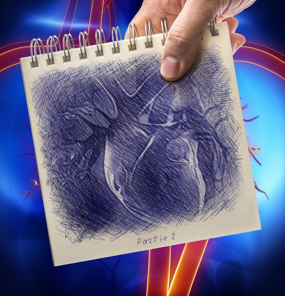 patient à risque d'endocardite infectieuse