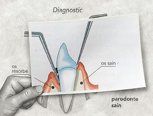 Parodonte malade Vs sain1.jpg