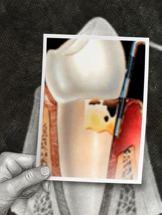 DÉCHAUSSEMENT DES DENTS OU GENCIVE QUI SAIGNE : Évaluer le stade de la maladie parodontale