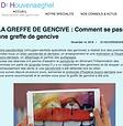 Comment_se_déroule_une_greffe_de_gencive