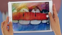 LES GREFFES DE GENCIVES : Les racines de mes dents deviennent visibles