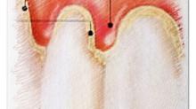GINGIVITE: mes gencives saignent pendant le brossage et parfois spontanément