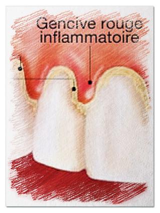 LA GINGIVITE ULCÉRO-NÉCROTIQUE : une gingivite avec un saignement des gencives mais surtout des genc