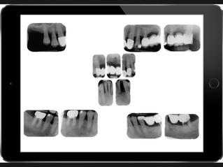 L'examen radiographique du bilan parodontal