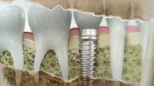 L'IMPLANT DENTAIRE: La solution pour préserver ses dents saines