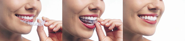 invisalign napa vineyard dental