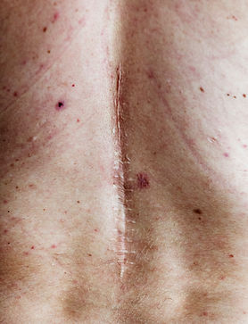 elderly-person-back-surgery-scar-PPNZ54S