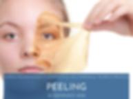 PEELING 160121