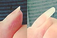 薄い爪ビフォーアフター.jpg