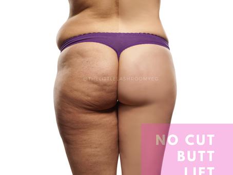 No Cut Butt Lift