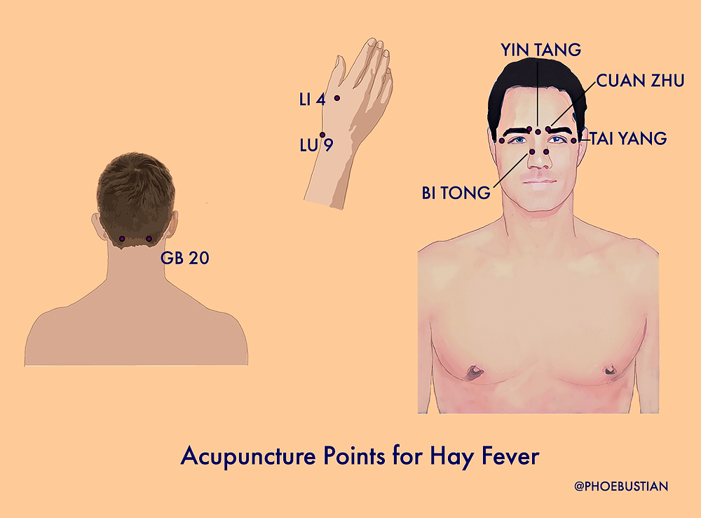 Acupuncture points for hay fever
