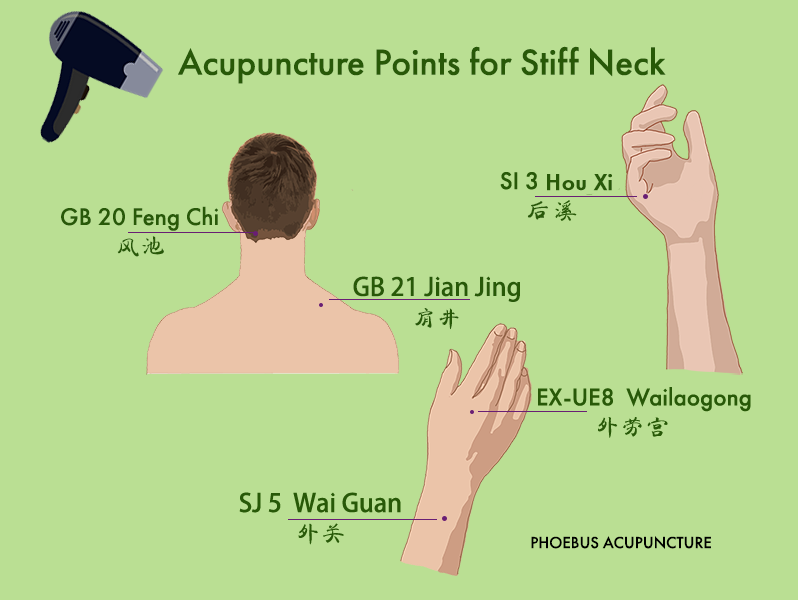 Acupuncture points for stiff neck
