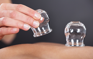 Cupping therapey.PNG