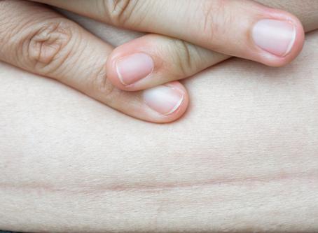 Abril mes internacional de la concientización sobre la cesárea