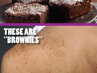DO YOU HAVE BROWNIES? NO, NOT THOSE BROWNIES. How to know if those brown spots are harmless or a sig