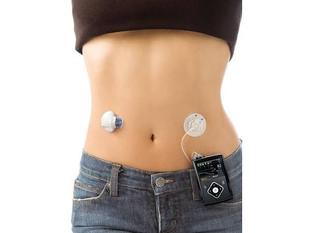 Bomba de Insulina Para Diabetes: Sim ou Não?