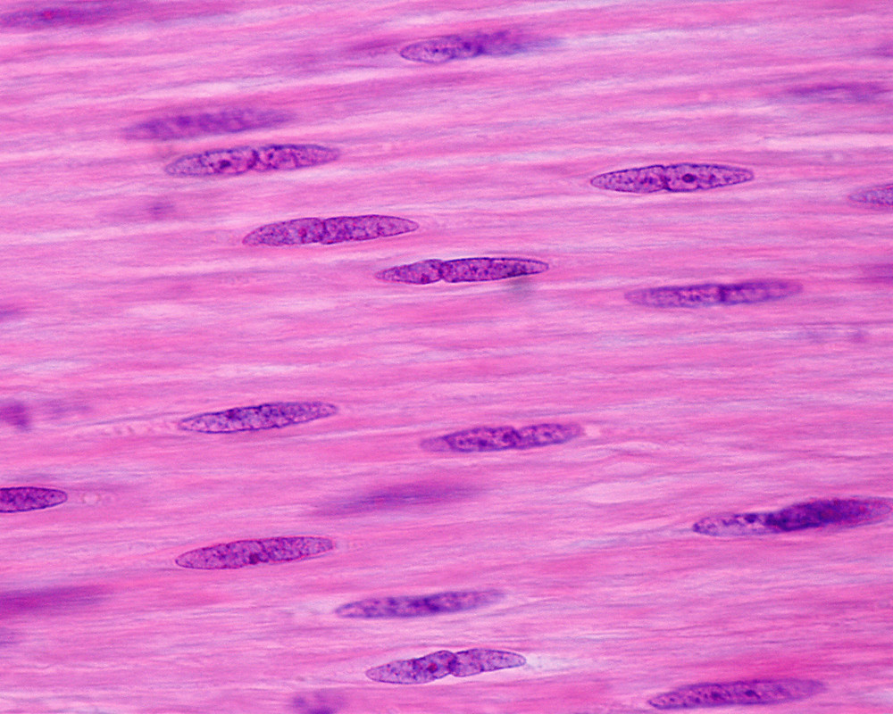 Smooth muscle fiber