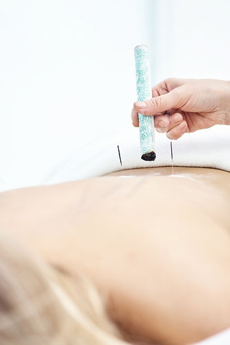 Woman being treated with acupuncture and