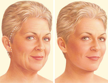 facelift-surgery-traditional-incision.jp