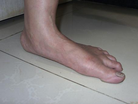 Flat Feet Facts